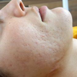 Acne littekens Dermalounge Hilversum