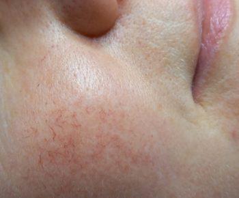 couperose behandeling Hilversum Dermalounge
