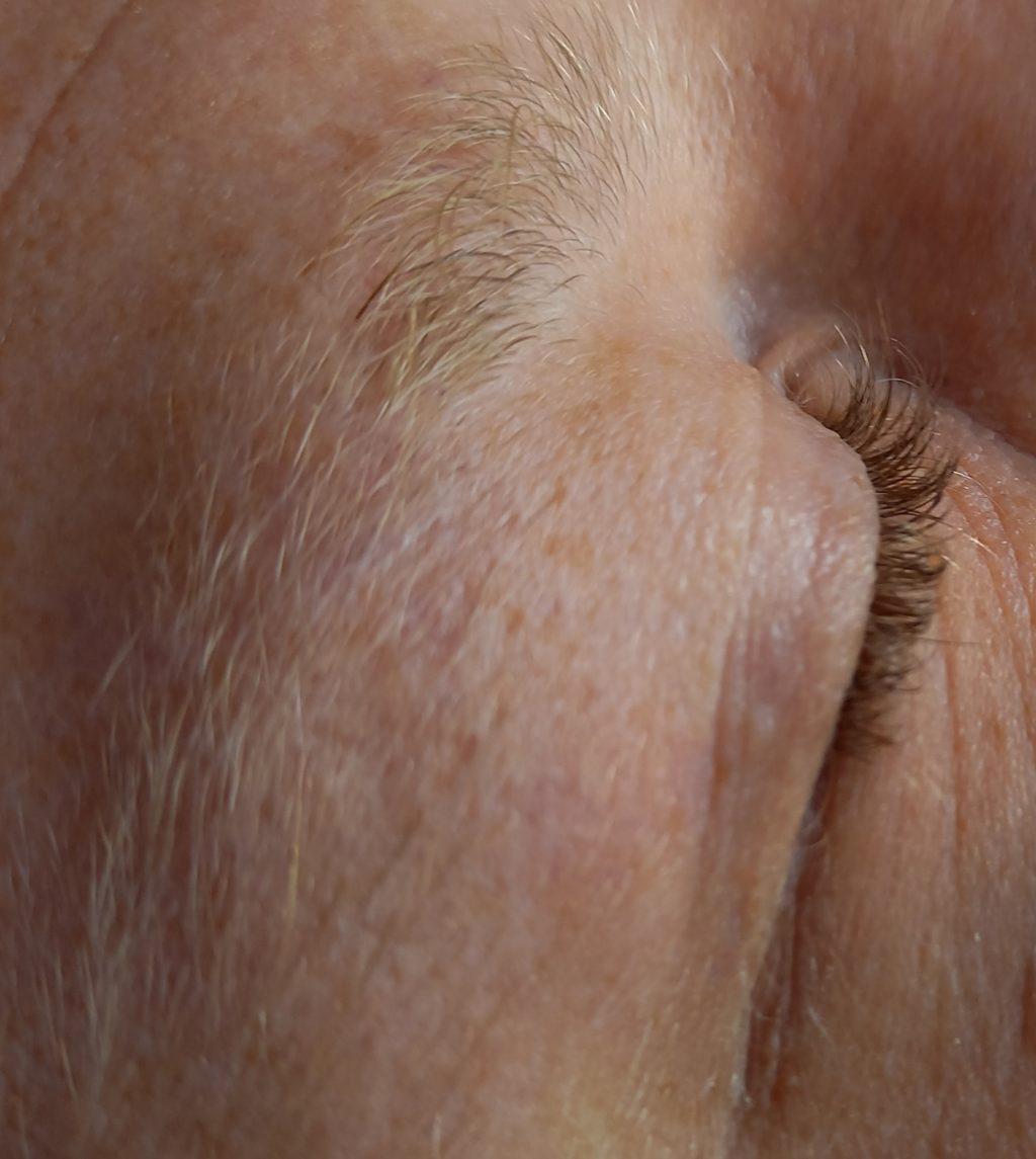 fibromen verwijderen Huid- en Laserkliniek DermaLounge